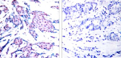 Immunohistochemistry (Paraffin-embedded sections) - c-Jun (phospho T93) antibody (ab28854)