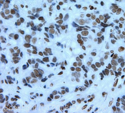 Immunohistochemistry (Formalin/PFA-fixed paraffin-embedded sections) - Histone H3 (mono+di+tri methyl K79) antibody - Limited Availability and ChIP Grade (ab28940)