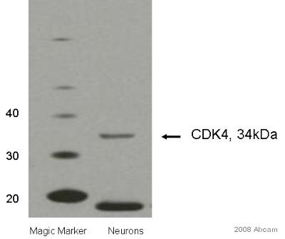 Western blot - Cdk4 antibody [DCS-35] (ab3112)