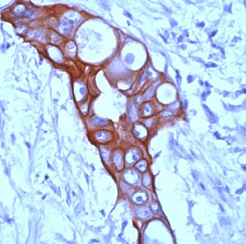 Immunohistochemistry (Formalin/PFA-fixed paraffin-embedded sections) - Acidic Cytokeratin antibody [AE1] (ab3117)