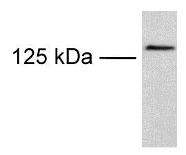 Western blot - TRPM8 antibody (ab3243)