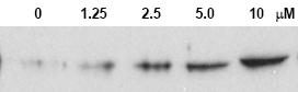 Western blot - Chk2 (phospho T68) antibody (ab3501)