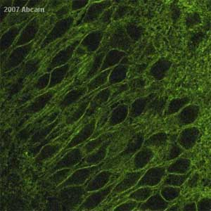 Immunohistochemistry (Formalin/PFA-fixed paraffin-embedded sections) - Calcium Pump PMCA1 ATPase antibody (ab3528)