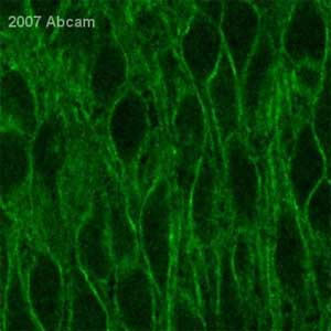 Immunohistochemistry (Formalin/PFA-fixed paraffin-embedded sections) - Calcium Pump PMCA3 ATPase antibody (ab3530)