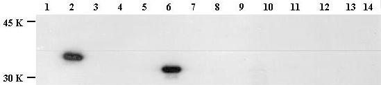 Western blot - Histone H1 (phospho T146) antibody (ab3596)