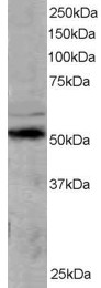 Western blot - SOCS4 antibody (ab3607)