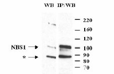 Western blot - Anti-p95 NBS1 antibody (ab3624)