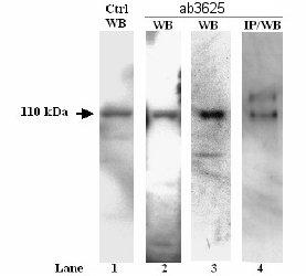 Western blot - SERCA2 ATPase antibody (ab3625)