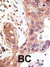 Immunohistochemistry (Formalin/PFA-fixed paraffin-embedded sections) - SENP1 antibody (ab3657)
