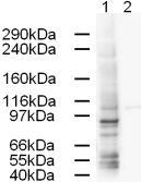 Western blot - gamma Adaptin antibody (ab3706)