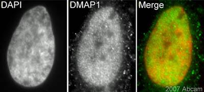 Immunocytochemistry/ Immunofluorescence - DMAP1 antibody (ab3737)