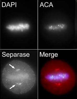 Immunofluorescence - Separase antibody (ab3762)