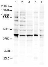 Western blot - RING2 / RING1B / RNF2 antibody (ab3832)