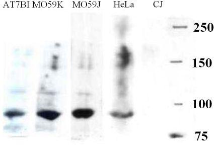 Western blot - Artemis antibody (ab3834)
