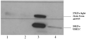 Immunoprecipitation - UBE2C antibody (ab3935)