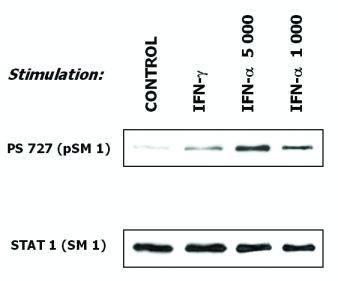 Western blot - STAT1 antibody [SM1] (ab3987)