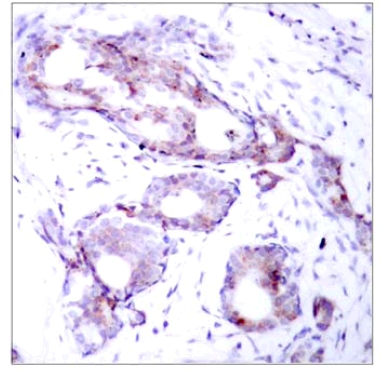 Immunohistochemistry (Formalin/PFA-fixed paraffin-embedded sections) - Anti-c-Myc (phospho S373) antibody (ab30643)