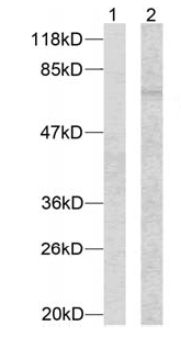 Western blot - MEF2A (phospho T312) antibody (ab30644)