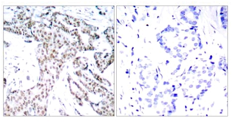 Immunohistochemistry (Formalin/PFA-fixed paraffin-embedded sections) - STAT3 (phospho S727) antibody (ab30647)