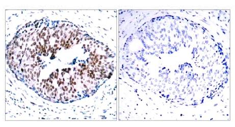 Immunohistochemistry (Paraffin-embedded sections) - STAT5a (phospho S780) antibody (ab30649)