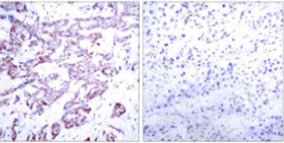 Immunohistochemistry (Paraffin-embedded sections) - STAT6 (phospho T645) antibody (ab30650)