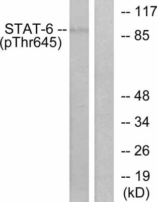 Western blot - STAT6 (phospho T645) antibody (ab30650)