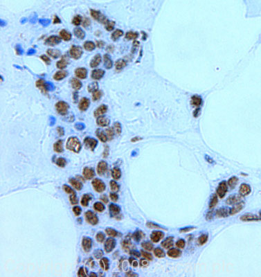 Immunohistochemistry (Formalin/PFA-fixed paraffin-embedded sections) - Mre11 antibody (ab30725)