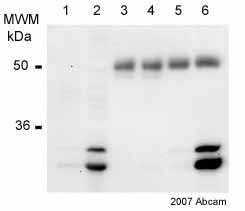 Immunoprecipitation - PHD3 antibody (ab30782)