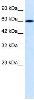 Western blot - DACH2 antibody (ab30909)