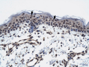 Immunohistochemistry (Formalin/PFA-fixed paraffin-embedded sections) - Anti-TAF9 antibody (ab30963)