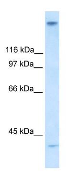 Western blot - ZNF318 antibody (ab30972)