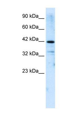 Western blot - ZNF323 antibody (ab30976)