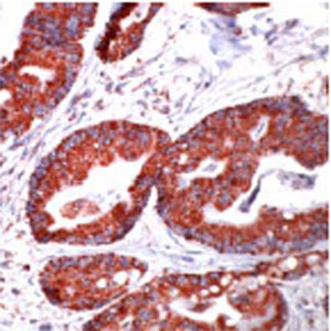 Immunohistochemistry (Formalin-fixed paraffin-embedded sections) - Hsp60 antibody (ab31115)