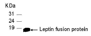 Western blot - Leptin antibody (ab31216)