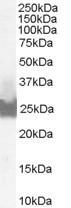 Western blot - Bid antibody (ab31273)