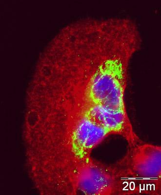 Immunocytochemistry/ Immunofluorescence - Calnexin - ER membrane marker antibody [AF18] (ab31290)