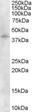 Western blot - Asporin antibody (ab31303)