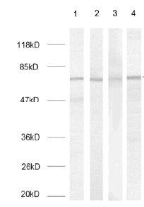 Western blot - Tau antibody (ab31357)
