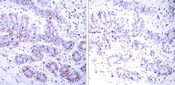 Immunohistochemistry (Paraffin-embedded sections) - STAT4 antibody (ab31376)