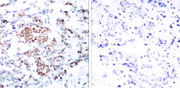 Immunohistochemistry (Paraffin-embedded sections) - STAT5a antibody (ab31377)
