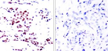 Immunohistochemistry (Paraffin-embedded sections) - STAT5a antibody (ab31379)