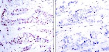 Immunohistochemistry (Paraffin-embedded sections) - STAT6 antibody (ab31384)