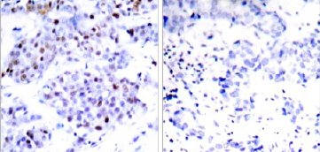 Immunohistochemistry (Paraffin-embedded sections) - STAT6 antibody (ab31386)