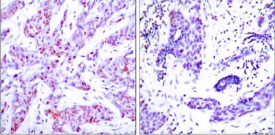 Immunohistochemistry (Formalin/PFA-fixed paraffin-embedded sections) - Anti-ATF-4 antibody (ab31390)