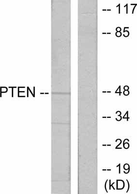 Western blot - PTEN antibody (ab31392)