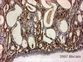 Immunohistochemistry (Formalin/PFA-fixed paraffin-embedded sections) - PDK1 antibody (ab31406)