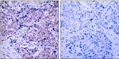 Immunohistochemistry (Formalin/PFA-fixed paraffin-embedded sections) - Anti-PDPK1 antibody (ab31406)