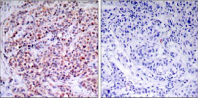 Immunohistochemistry (Formalin/PFA-fixed paraffin-embedded sections) - Anti-NF-kB p65 antibody (ab31407)