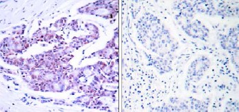 Immunohistochemistry (Formalin/PFA-fixed paraffin-embedded sections) - Anti-NF-kB p65 antibody (ab31408)