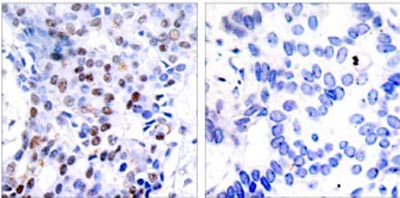 Immunohistochemistry (Paraffin-embedded sections) - c-Jun antibody (ab31415)